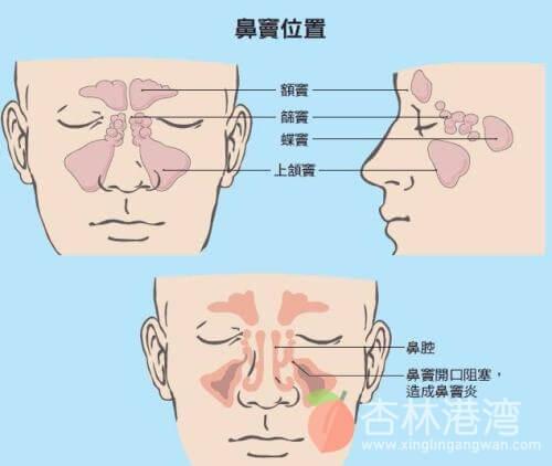 鼻窦的位置
